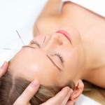acupuntura-150x150