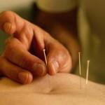 acupuntura-sistemica